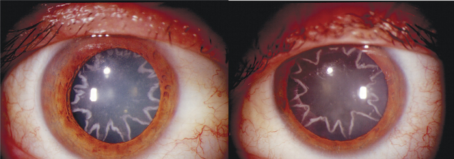 Starburst cataract shape after man sustained electrical shock